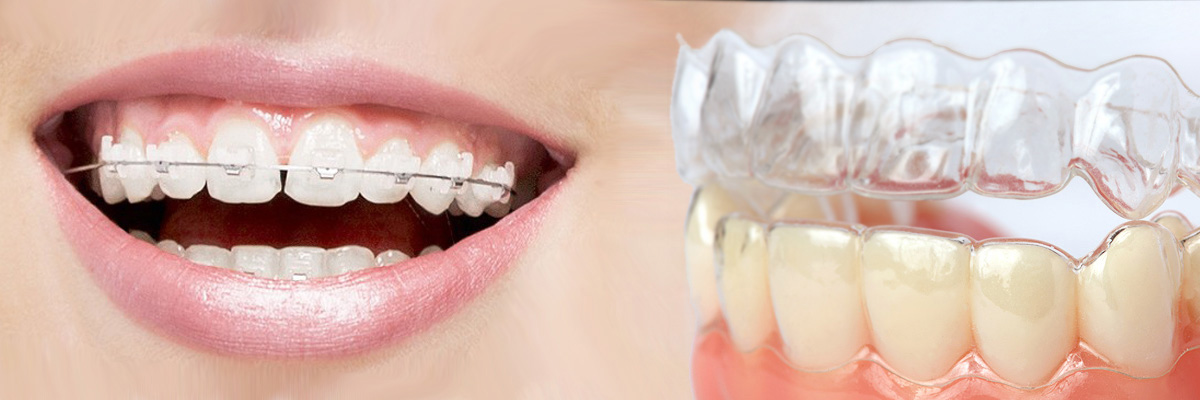 El Dorado Hills Which is Better Invisalign or Braces